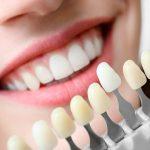 Виниры или люминиры: что лучше для создания красивой улыбки