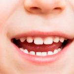 Чому важливо вчасно лікувати молочні зуби