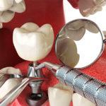 Виды и факторы выбора зубных имплантов