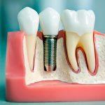 Задачи и возможности современной хирургической стоматологии