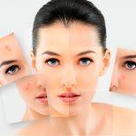 7 принципов ухода за проблемной кожей лица